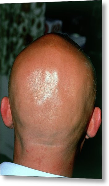 Alopecia Areata (hair Loss) Over The Scalp Of Man Metal Print by Dr P. Marazzi/science Photo Library