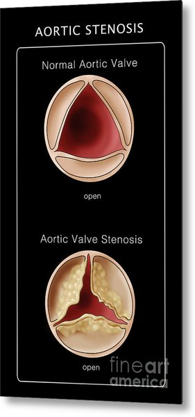 Aortic Valve, Normal & Stenosis Metal Print