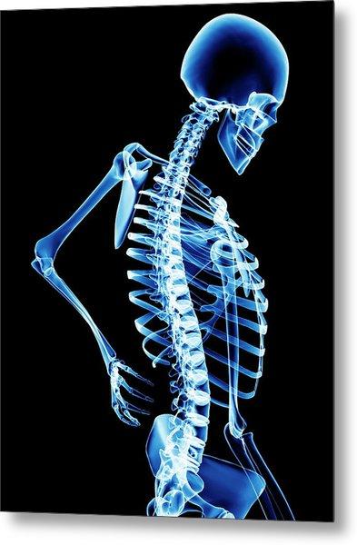 Back Pain Metal Print by Pasieka