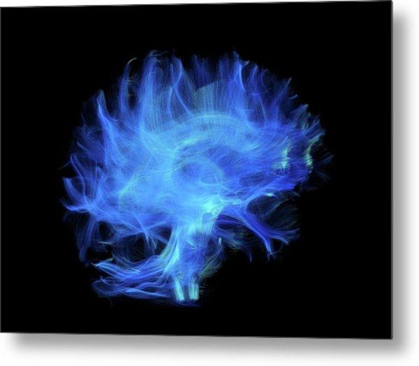 Brain Fibres Metal Print