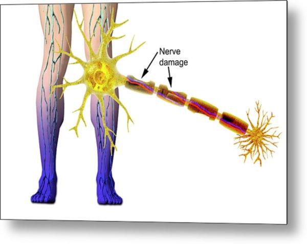 Diabetic Neuropathy Metal Print