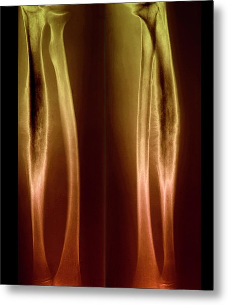 Ewing's Sarcoma by Zephyr/science Photo Library