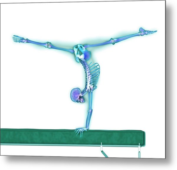 Gymnast Balancing On A Beam Metal Print by Gustoimages/science Photo Library