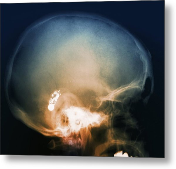 Hearing Aid, X-ray Metal Print by Science Photo Library