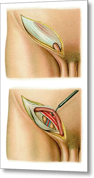 Inguinal Hernia Surgery Metal Print by Science Photo Library