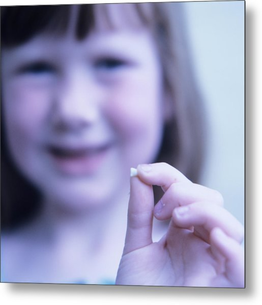 Loss Of Milk Teeth Metal Print by Mark Thomas/science Photo Library
