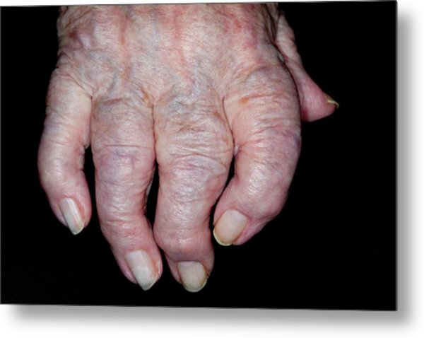 Osteoarthritis Of The Hand Metal Print by Dr P. Marazzi/science Photo Library