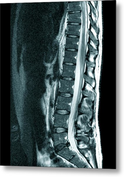 Spine In Multiple Sclerosis Metal Print by Zephyr/science Photo Library
