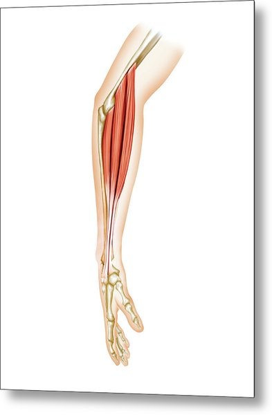 Superficial Muscles Of Forearm Metal Print by Asklepios Medical Atlas