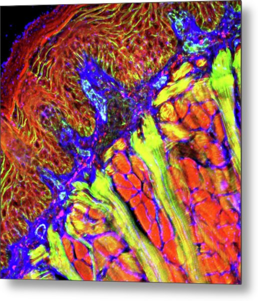 Tongue Tissue Metal Print by R. Bick, B. Poindexter, Ut Medical School