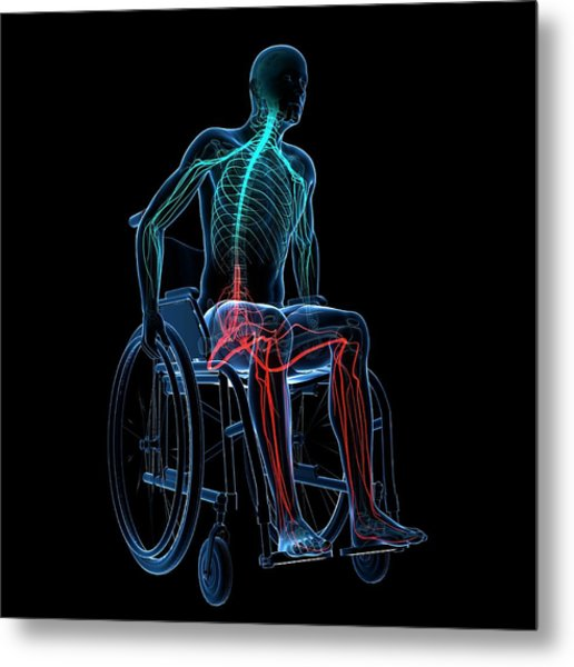 Man In A Wheelchair Metal Print by Sciepro/science Photo Library