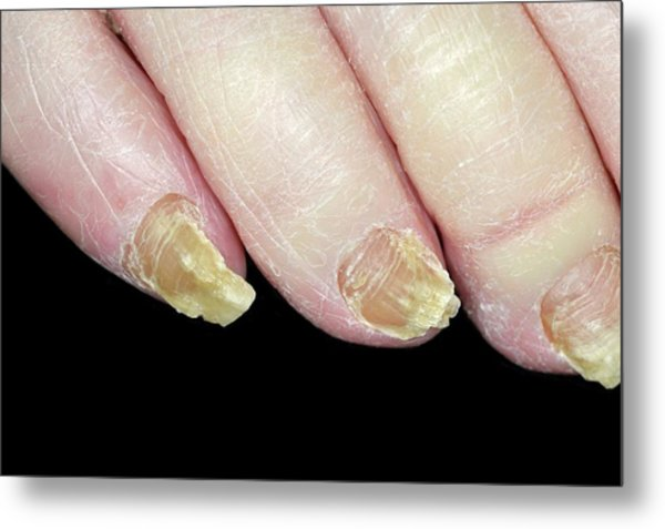 Fungal Nail Infection Metal Print by Dr P. Marazzi/science Photo Library