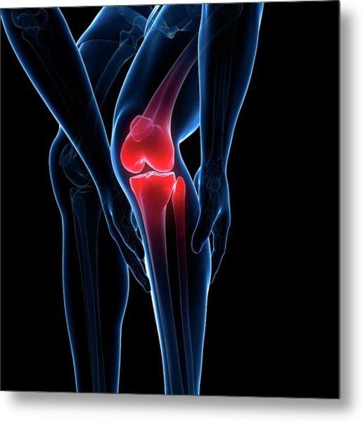 Painful Knee Metal Print by Sciepro/science Photo Library