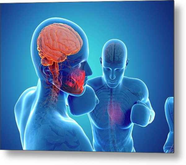 Boxing Match Metal Print by Sciepro/science Photo Library
