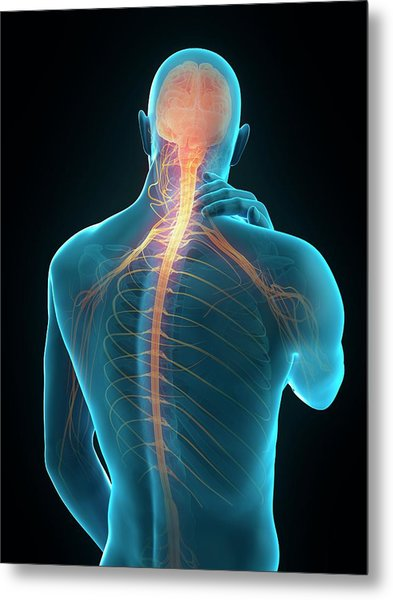 Human Neck Pain Metal Print by Sebastian Kaulitzki/science Photo Library