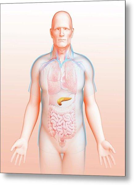 Male Pancreas Metal Print by Pixologicstudio/science Photo Library