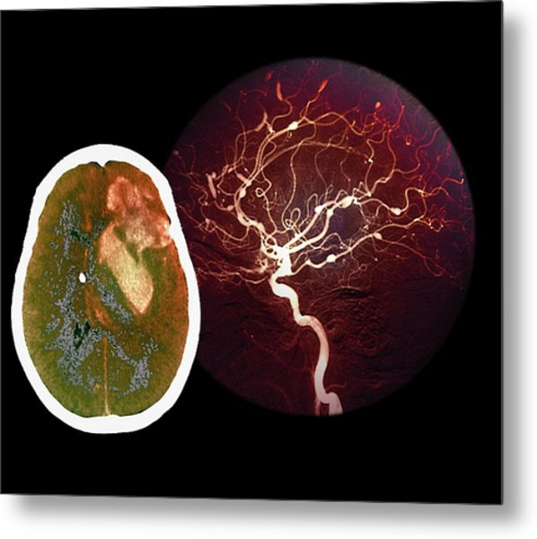 Brain Haemorrhage From Aneurysm Metal Print by Zephyr/science Photo Library