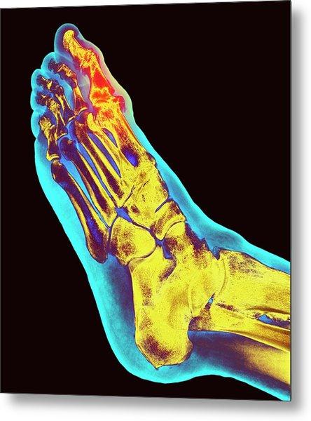 Degenerative Foot Deformation Metal Print