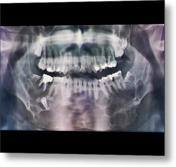 Jaw Cancer (ameloblastoma) Metal Print by Zephyr/science Photo Library