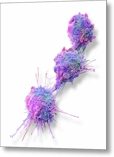 Ovarian Cancer Cells Metal Print by Steve Gschmeissner
