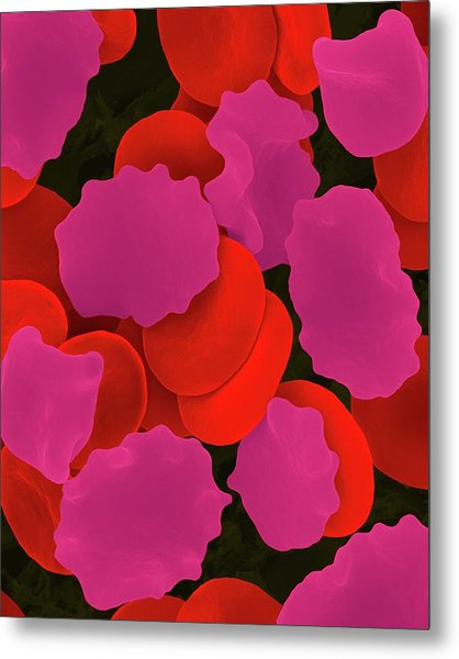 Red Blood Cells In Hypertonic Solution Metal Print by Dennis Kunkel Microscopy/science Photo Library