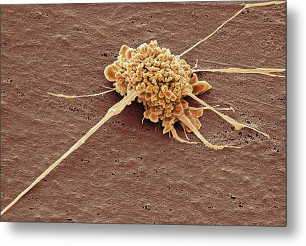 Stem Cell Metal Print by Steve Gschmeissner