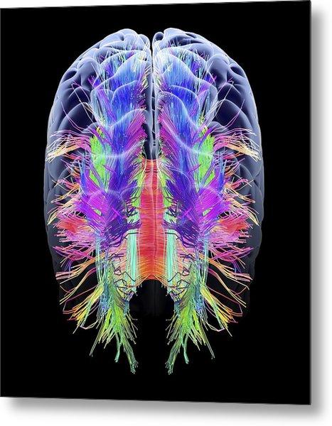 White Matter Fibres And Brain, Artwork Metal Print
