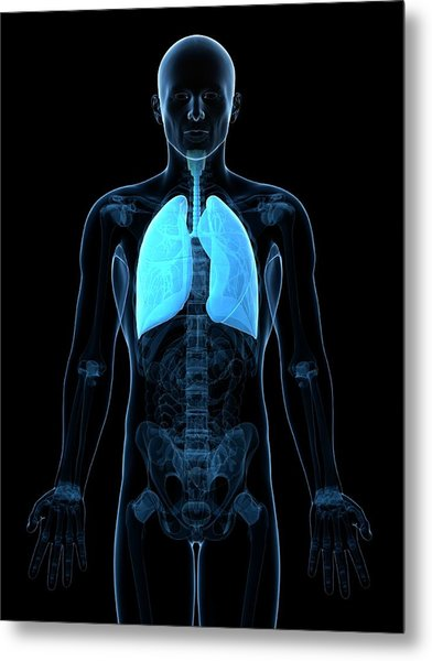 Healthy Lungs Metal Print by Sciepro/science Photo Library
