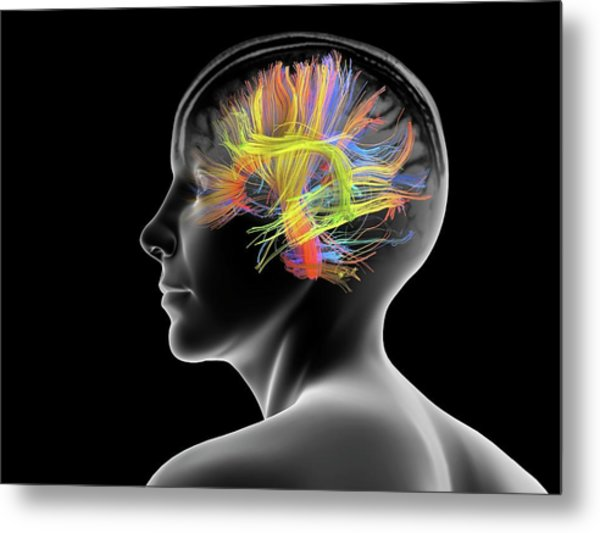 White Matter Fibres Of The Human Brain Metal Print by Alfred Pasieka