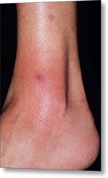 Cellulitis Metal Print by Dr P. Marazzi/science Photo Library