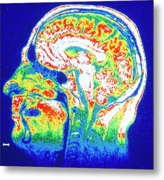 False-colour Nmr Scan Of The Head Metal Print by Cnri/science Photo Library