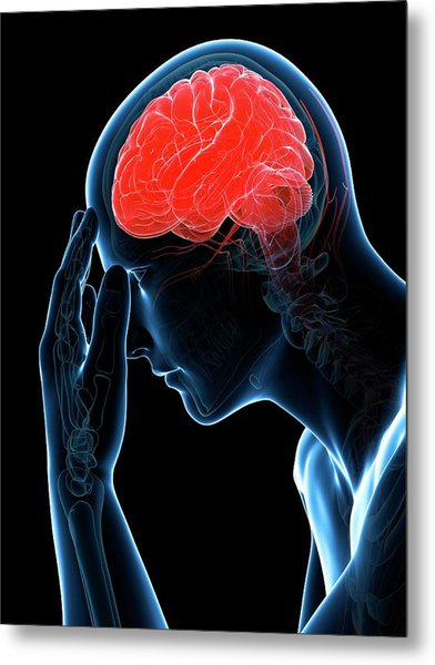Headache Metal Print by Sciepro/science Photo Library