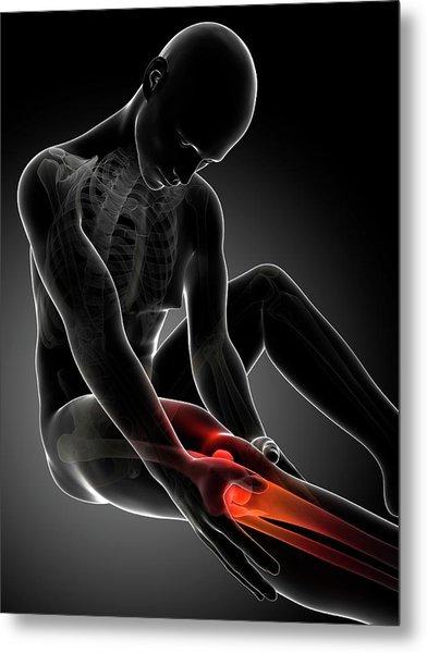 Human Knee Pain Metal Print by Sebastian Kaulitzki