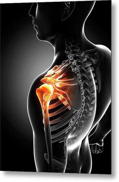 Shoulder Pain Metal Print by Sciepro/science Photo Library