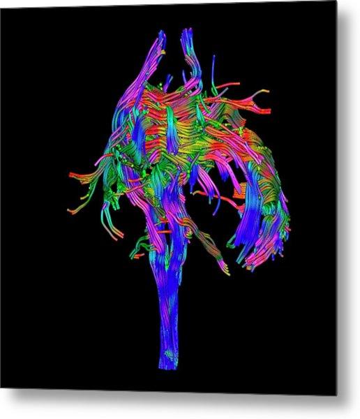 Brain Tumour Metal Print by Simon Fraser/science Photo Library