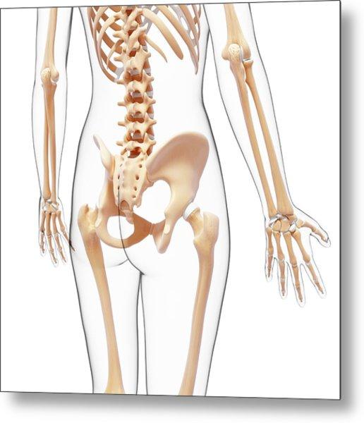 Human Skeleton Metal Print by Pixologicstudio/science Photo Library