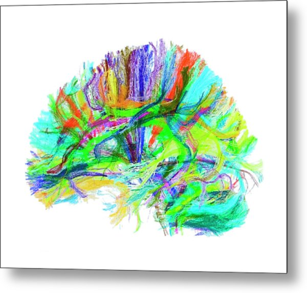 Advanced Mri Brain Scan Metal Print by Philippe Psaila/science Photo Library