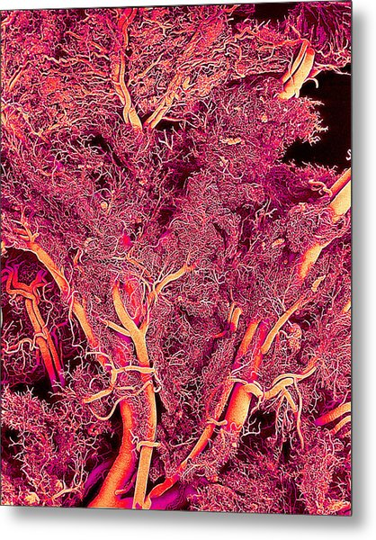 Blood Vessels Metal Print by Susumu Nishinaga