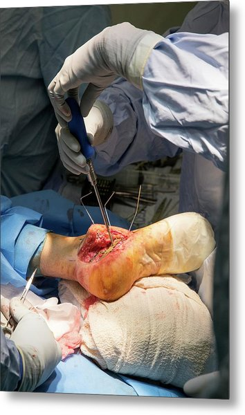 Heel Bone Surgery Metal Print by Mark Thomas/science Photo Library