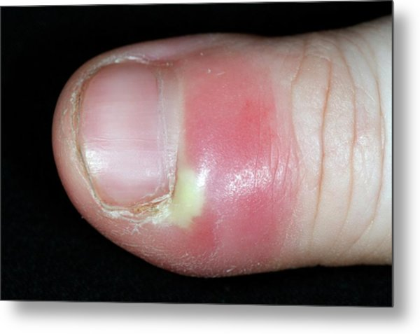 Paronychia Infection Of The Thumb Metal Print by Dr P. Marazzi/science Photo Library