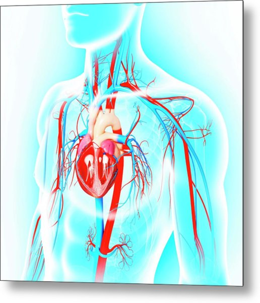 Male Cardiovascular System Metal Print by Pixologicstudio/science Photo Library