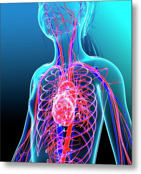 Human Cardiovascular System Metal Print by Pixologicstudio/science Photo Library