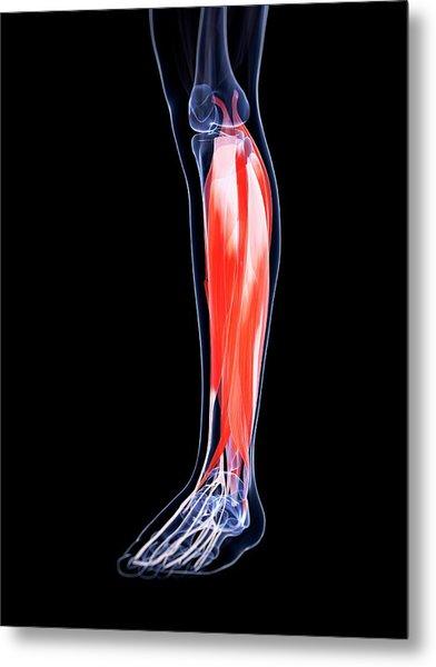 Human Calf Muscles Metal Print by Sebastian Kaulitzki