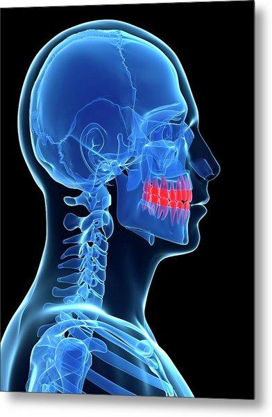 Human Teeth Metal Print by Sebastian Kaulitzki