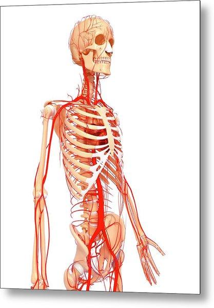 Human Arteries Metal Print by Pixologicstudio/science Photo Library