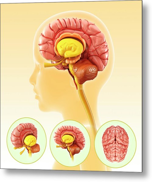 Child's Brain Anatomy Metal Print by Pixologicstudio/science Photo Library