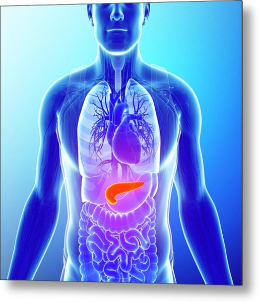 Human Pancreas Metal Print by Pixologicstudio/science Photo Library