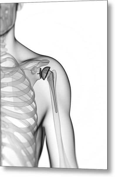 Human Shoulder Replacement Metal Print by Sebastian Kaulitzki