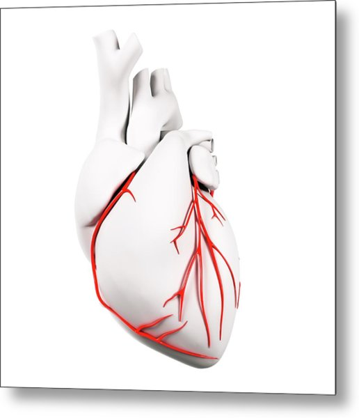 Coronary Arteries Metal Print by Sciepro/science Photo Library