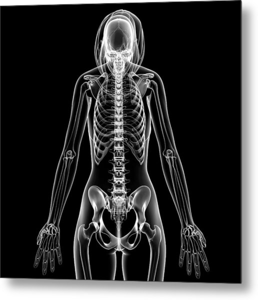 Female Skeleton Metal Print